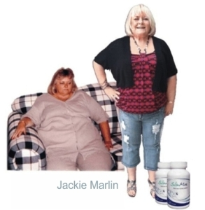 Jackie Marlin Before and After